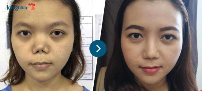 Mũi nhiễm trùng lâu ngày dẫn đến biến dạng.