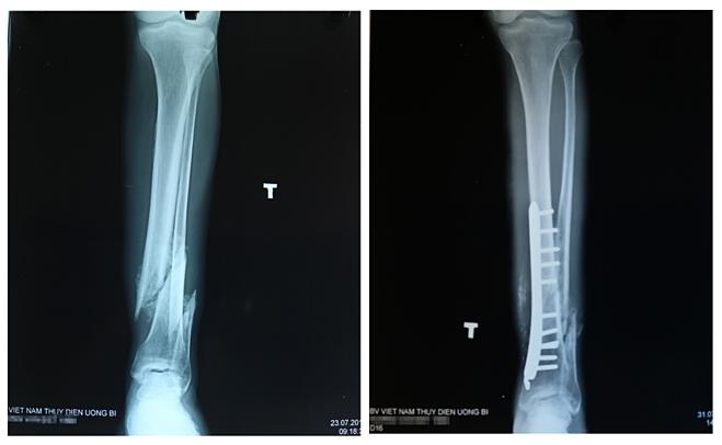 Ảnh X-quang xương chân bị lệch (hình trái) và phần xương sau khi được bác sĩ xử trí (hình phải). Ảnh: Bệnh viện Việt Nam - Thụy Điển Uông Bí