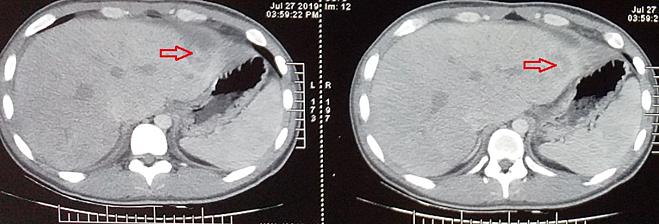 Hình ảnh dị vật đâm xuyên qua vùng gan trái trên phim CT scan bụng. Ảnh bệnh viện cung cấp.