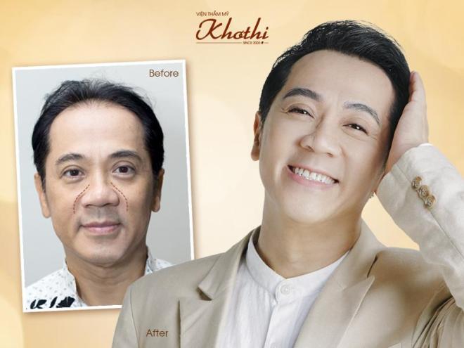 Khơ Thị công bố phương pháp độc quyền khắc phục nhược điểm của căng da mặt - 1