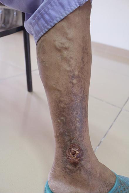Vùng da chân bị viêm loét của bệnh nhân. Ảnh: Bệnh việnViệt Nam - Thụy Điển Uông Bí