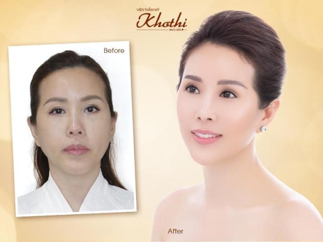 Khơ Thị công bố phương pháp độc quyền khắc phục nhược điểm của căng da mặt