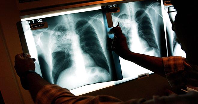 Bệnh Lao khiến 4.400 người chết mỗi ngày trên thế giới.Ảnh: Newsweek