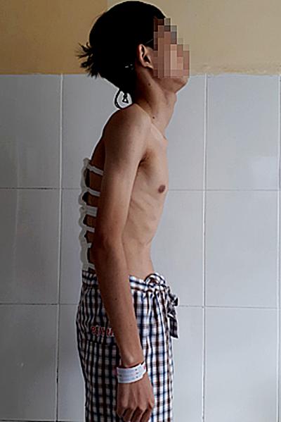 Sau phẫu thuật, cột sống bệnh nhân đã cải thiện. Ảnh: Bác sĩ cũng cấp.