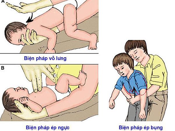 Cách xử trí trẻ hóc dị vật. Ảnh: V.H