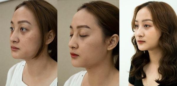 Khuôn mặt Mai Hươngkhi chị nám khá nhạt nhòa và thiếu sức sống. Những sau khi trị liệu, xóa bỏnám và tàn nhanh,chị trông trẻ trung hơn.