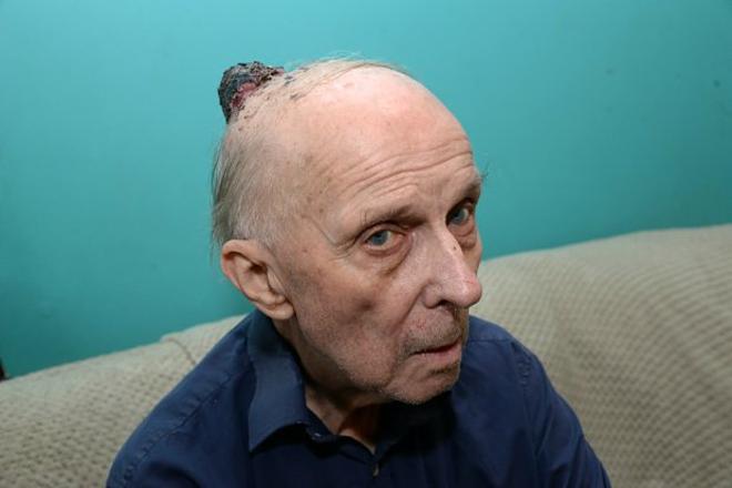 Khốiu ở phía sau hộp sọngày một to lên gây đau đớn là biểu hiện của ung thư da mà ông  George gặp phải. Ảnh: The Sun