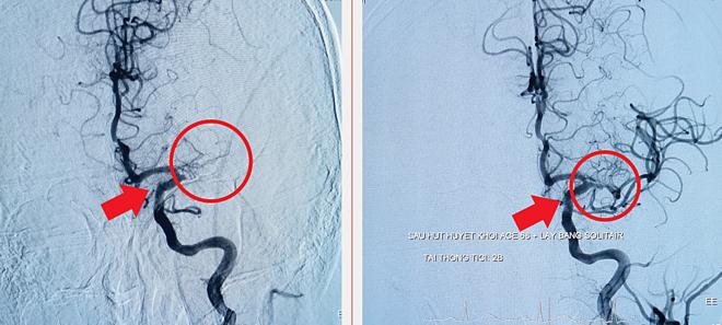 Hình ảnh DSA mạch máu não của bệnh nhân trước (bên trái) và sau can thiệp. Ảnh bệnh viện cung cấp.