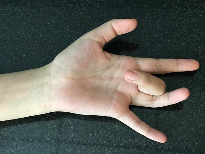 Người bệnh không thể tự duỗi ngón tay ra sau khi gập.Ảnh: Cẩm Anh