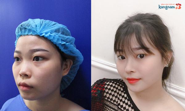 Trần Thanh Lan Trúc rạng rỡ sau 2 tháng nâng mũi sụn sườn Nanoform