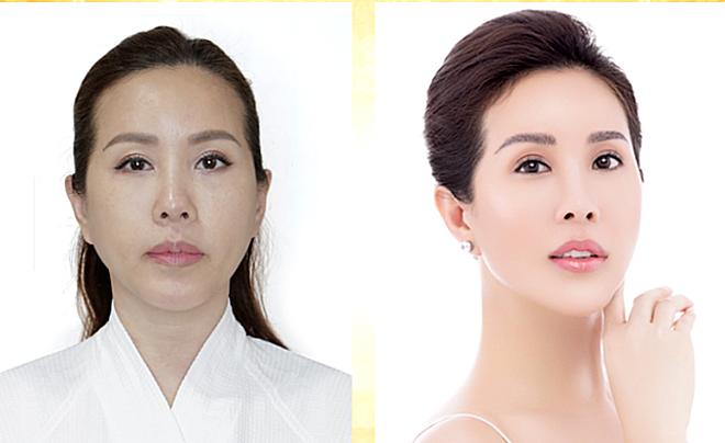 Hoa hậu Thu Hoài trẻ trung hơn sau liệu trình Ultherapy và Ultra Cell.