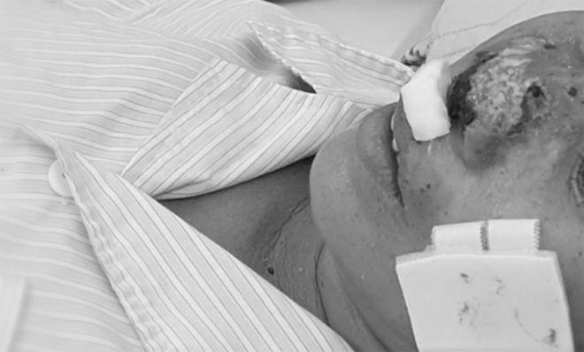 Cánh mũi của bệnh nhân bị vi khuẩn Whitmore tấn công.Ảnh: Mai Thanh.