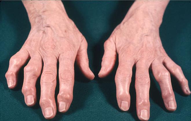 Phòng tránh bệnh xương khớp như thế nào?