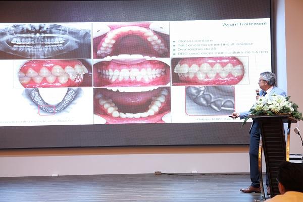 Rút ngắn thời gian niềng răng với công nghệ Dr Philippe Tarot