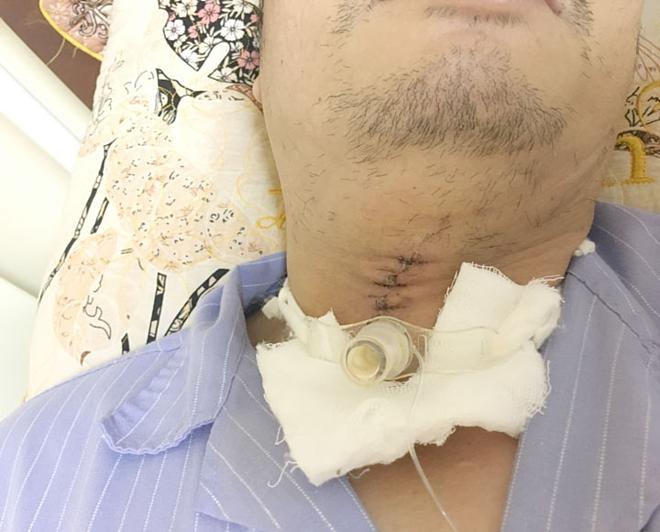 Vết thương đã được khâu lại an toàn. Ảnh: Bệnh viện Việt Nam - Thụy Điển Uông Bí