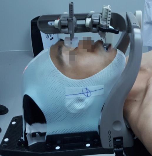 bệnh nhân được sử dụng khung định vị để xạ trị khu trú. Ảnh bệnh viện cung cấp.