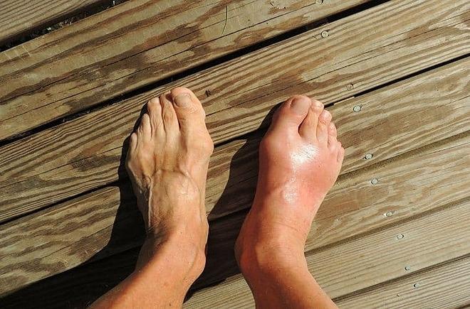 Triệu chứng của bệnh gout cấp là sưng đau, nóng đỏ ở khớp,thường gặp ở bàn chân hoặc ngón chân cái. Ảnh: Awakening State