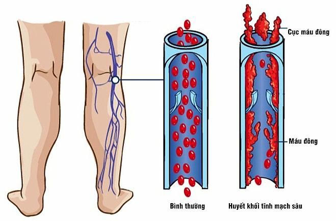 Bệnh thường bắt đầu ở các cục máu đông trong tĩnh mạch cẳng chân, tay. Ảnh: Amar Health