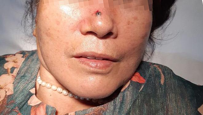 Nốt mụn cảnh báo ung thư da trên sống mũi bệnh nhân mà 2 năm nay bà tưởng nốt ruồi vô hại. Ảnh: Bệnh viện Việt Nam - Thụy Điển Uông Bí