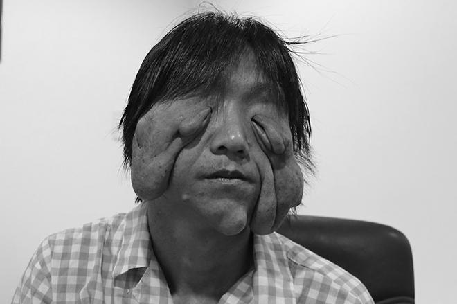 Chàng trai biến dạng mặt vì u sợi thần kinh