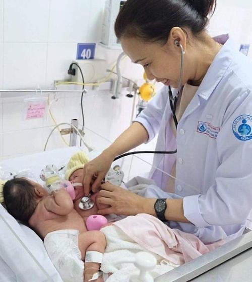 Hai bé gái được chăm sóc trong thời gian chờ mổ tại Bệnh viện Nhi đồng 1. Ảnh do bệnh viện cung cấp.