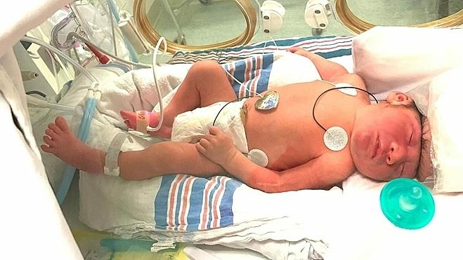 Lucas chào đời với khiếm khuyết ở não khiến hộp sọ không được hình thành đầy đủ như những đứa trẻ khác. Ảnh: Fox news