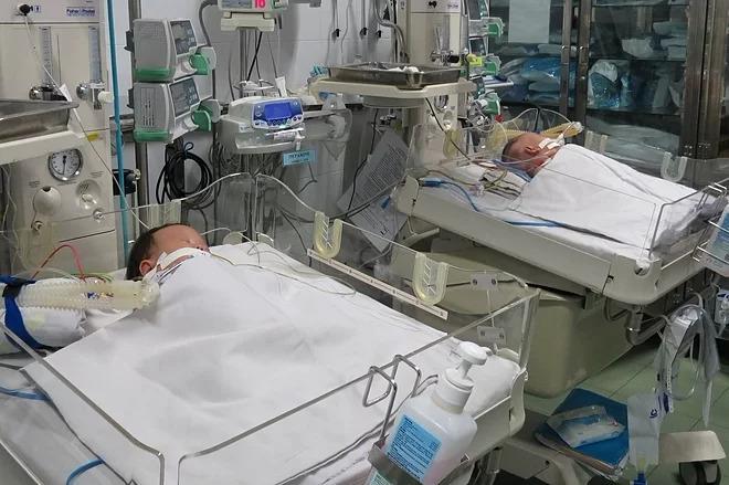 Hai bé sau ca mổ tách dính vùng ngực và gan. Ảnh do bệnh viện cung cấp.