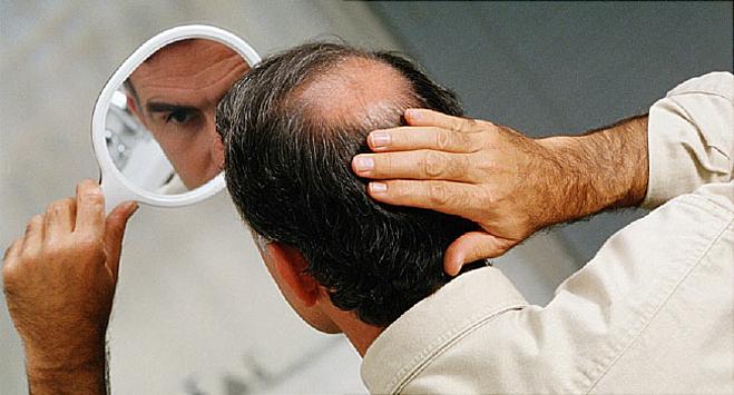 Ô nhiễm không khí khiến tình trạng hói đầu ở nam giới nghiêm trọng hơn. Ảnh: WebMD