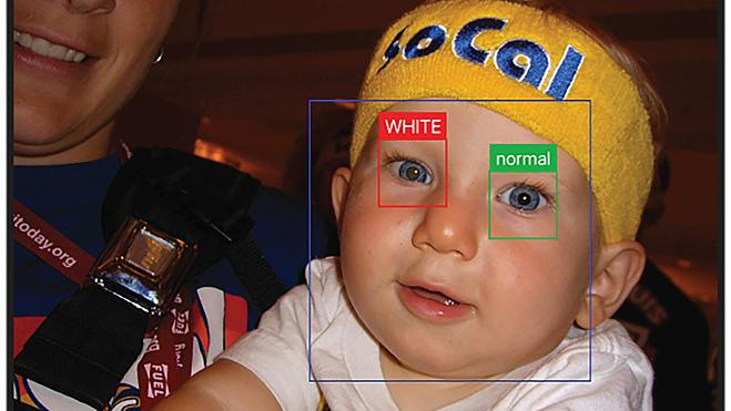 Thông qua bức ảnh, Al sẽ phát hiện hiện tượng phản xạ màu trắng bất thường từ võng mạc, liên quan đến các bệnh về mắt. Ảnh: NPR