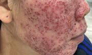 Bong tróc mặt do lột da bằng vi tảo biển