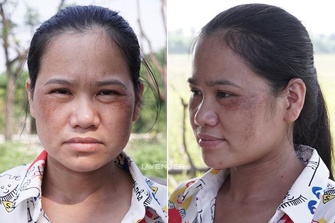 Da chị Thủy bị tăng sắc tố nặng khi trị liệusai cách.
