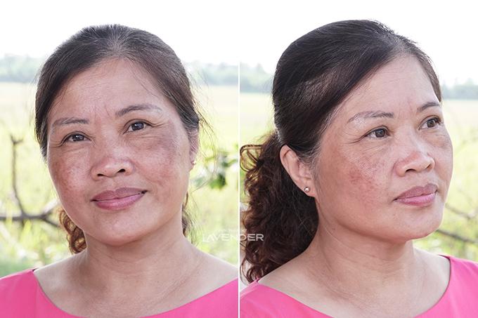 Làn da cô Thuận có vết nám dày hơn trước.