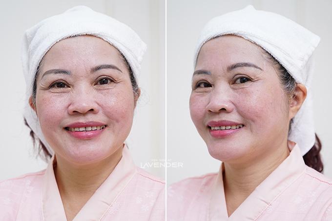 Làn da cô Thuận được cải thiện sau trị liệu. Xem ảnh trước và sau khi trị liệu nám với Mela Extra.