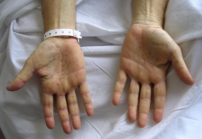 Thông thường, dấu hiệu rõ nhất của bệnh giang mai là các dát đỏ hồng rải rác ở thân mình. Song, giang mai kín thường không có biểu hiện lâm sàng. Ảnh: Cancer Therapy Sdvisor