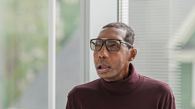 Khuôn mặt sau khi cấy ghép của Robert. Ảnh: CNN