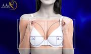Chuyên gia chia sẻ ứng dụng tỷ lệ 'vàng' trong nâng ngực
