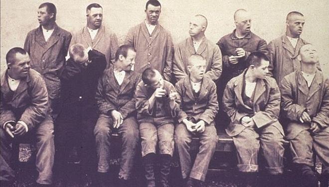 Các bệnh nhân trong thí nghiệm sâu răng vào năm 1940. Ảnh: The Living History