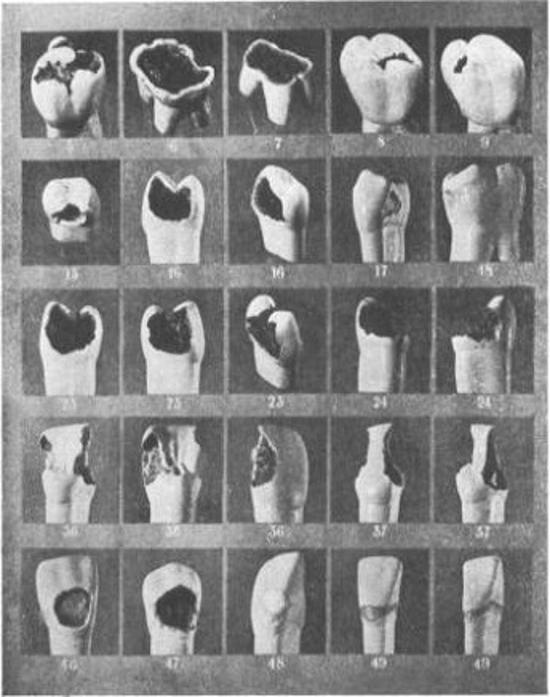 Mẫu răng của các bệnh nhân trong thí nghiệm. Ảnh:The Living History