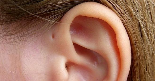 Lỗ nhỏ trên vành tai là đặc điểm di truyền rất ít người sở hữu. Ảnh: Bright Side