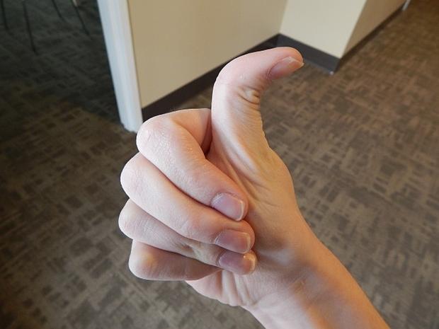 Ngón cái có thể uốn cong 90 độ nếu bạn sở hữu loại gene đặc biệt bendy thumb. Ảnh: Bright Side