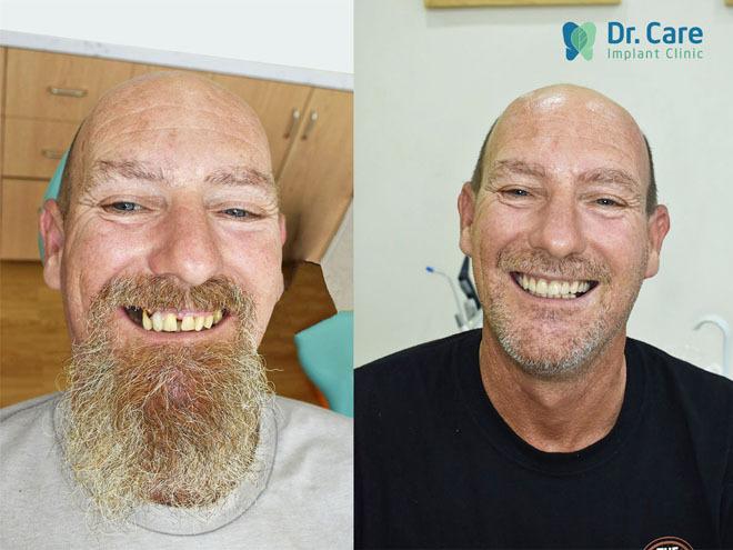 Nụ cườitự tin của anh Darren sau khitrồng răng Implant.