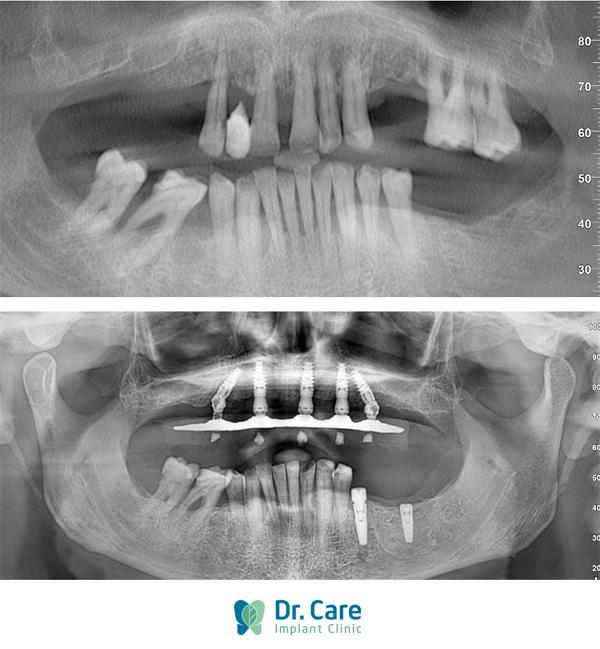 Ảnh chụp X-Quang CT hàm răng củaDarren trước (trên) và sau khi trồng răng Implant.