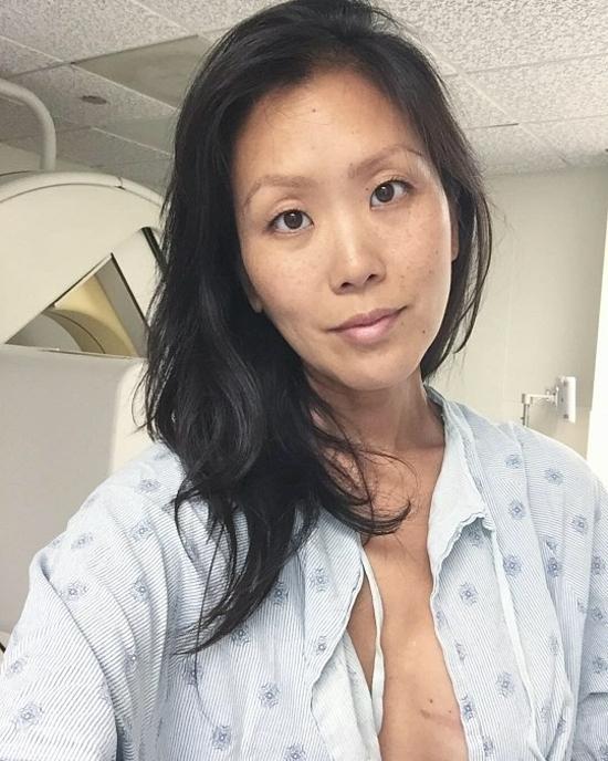 Susie được chẩn đoán mắc ung thư vú lần haikhi đang mang thai. Ảnh: Susie Lee