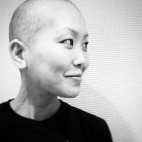 Susie với chiếc đầu trọc trong quá trình xạ trị. Ảnh: Susie Lee