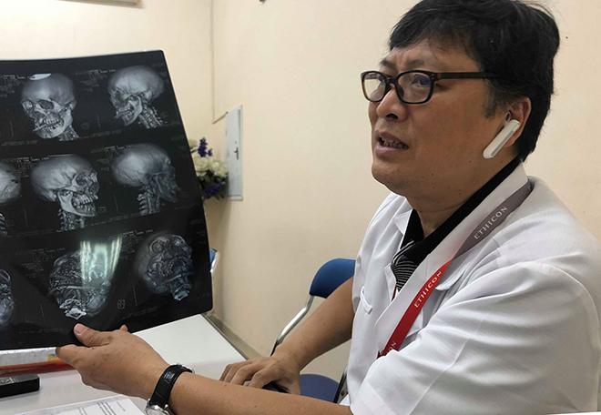 Bác sĩ Chính đọc phim sọ não cho bệnh nhân ảo giác. Ảnh: H.H