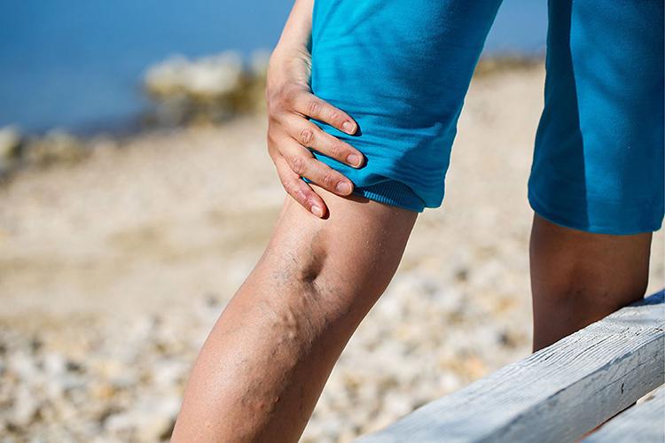 Người bệnh thường xuyên cảm thấy đau nhức chân, các khớp.