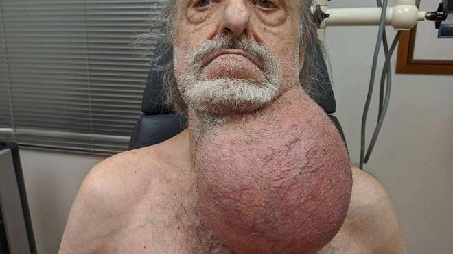 Khối u ở cổ của bệnh nhân Wingert trước khi phẩu thuật.Ảnh: Mount Sinai Health System