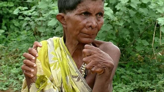 Bàn tay thừa ngón của bà gây nhiều bất tiện trong cuộc sống. Ảnh: Fox News