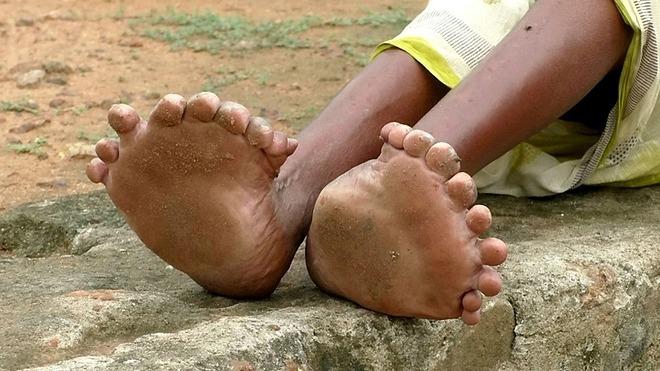 Hai bàn chân của bà phình bất thường, các ngón chân nhỏ, dính vào nhau. Ảnh: Fox News