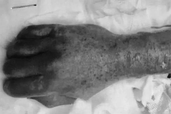 Bàn tay sưng phồng, mẩn đỏ và bị khuẩn C. canimorsusăn của người đàn ông. Ảnh: Mirror